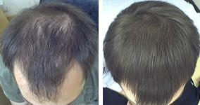 "Hair Loss Treatment Comparison - ""My hair is unrecognisably thicker"""