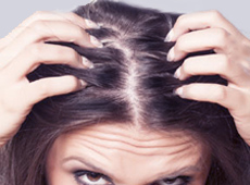 Hair Loss - Thinning Hair in Women