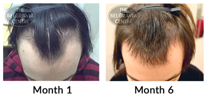 Hairline for to receding what use The Best