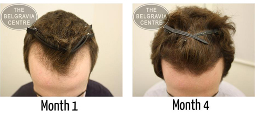Receding Hairline Prevent And Regrow A Receding Hairline