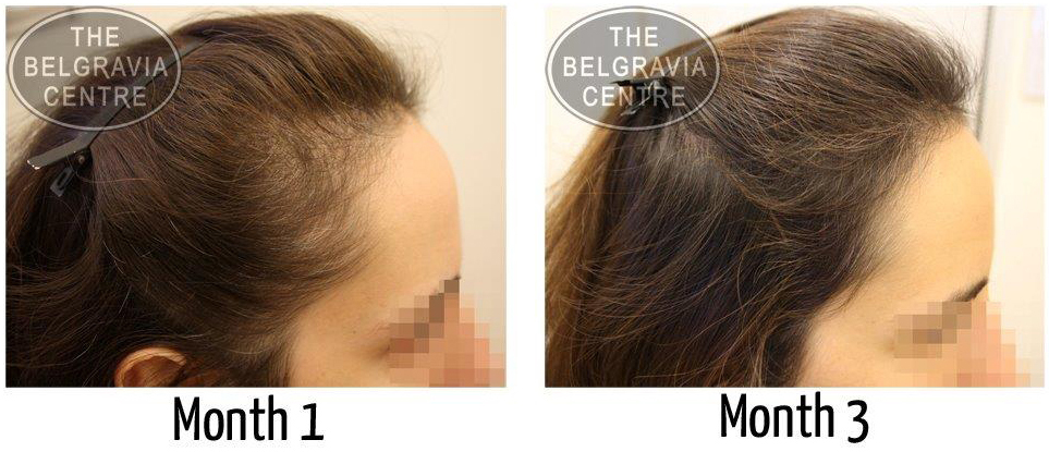 """Female Hair Loss Patient: """"...Pace of Hair Loss Has Significantly Reduced..."""""""