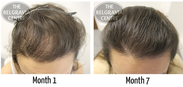 """Female Hair Loss Patient: """"...The Results I Have Had So Far Are Outstanding..."""""""
