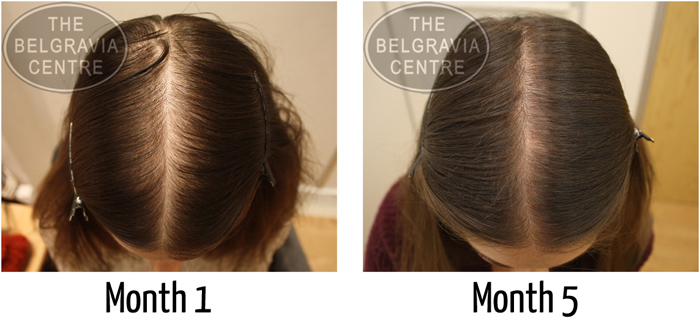 "Belgravia Diffuse Hair Loss Client: ""My Hair Has Become Thicker"""