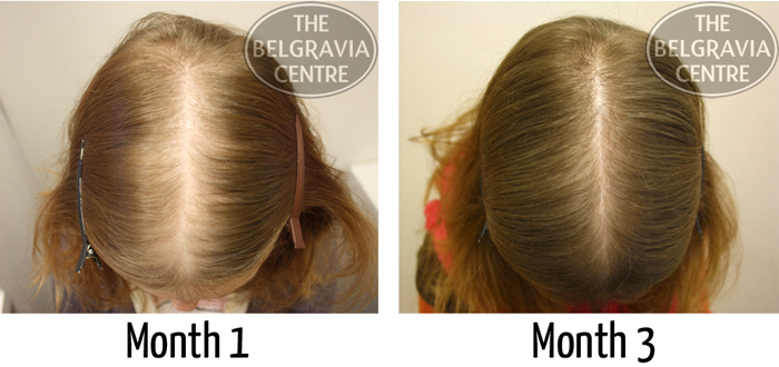 "Belgravia Diffuse Hair Loss Client, Erika: ""I Am Very Pleased with the Result"""