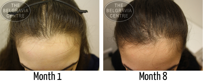 "Belgravia Diffuse Hair Loss Patient: ""I Highly Recommend"""