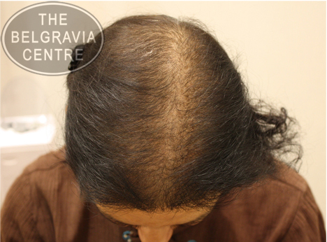 "Belgravia Diffuse Hair Loss client: ""Worth The Money Spent"""
