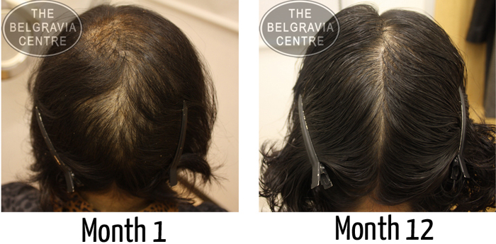 "Belgravia Telogen Effluvium Hair Loss Patient: ""I Have Amazing Results"""