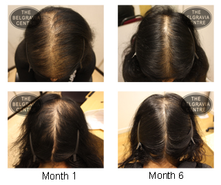 Hair Loss In Women Female Hair Loss