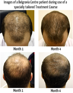Male Pattern Hair Loss 1 The Belgravia Centre