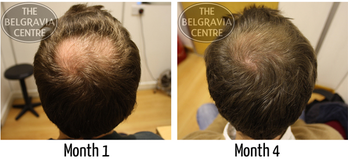"Alex Was Pleased with his ""...Surprisingly Good Results..."" Following Hair Loss Treatment at The Belgravia Centre"