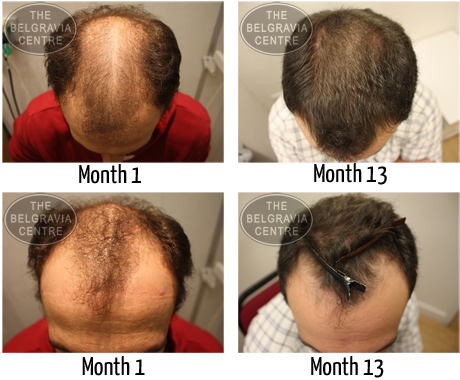 Male Hair Loss Before After Regrowth