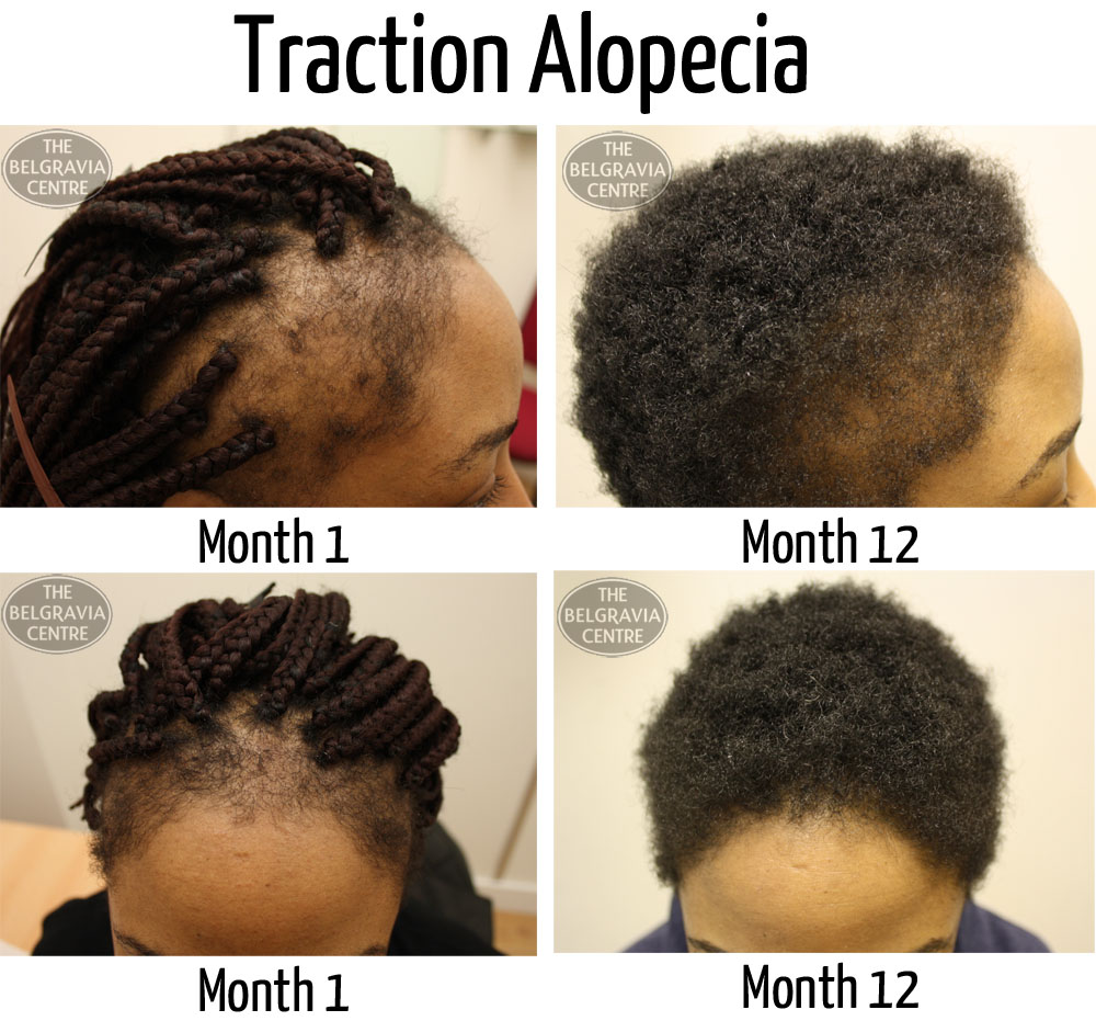 traction alopecia before and during treatment photos minoxidil