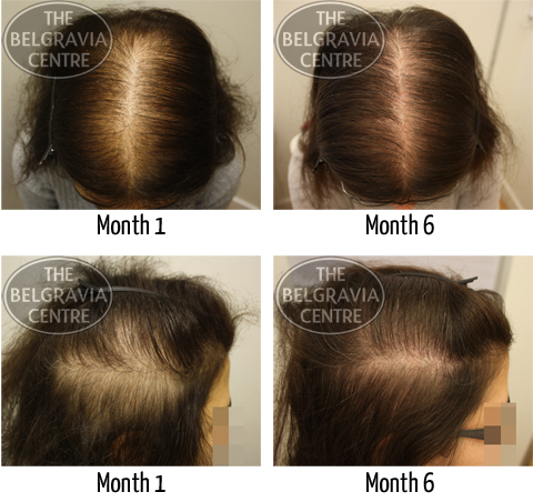 Diffuse Thinning Hair Loss Treated by The Belgravia Centre