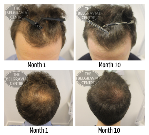 View Our Extensive 'Hair Loss Success Stories' Gallery to See Regrowth Results for Over 1,000 Belgravia Centre Patients