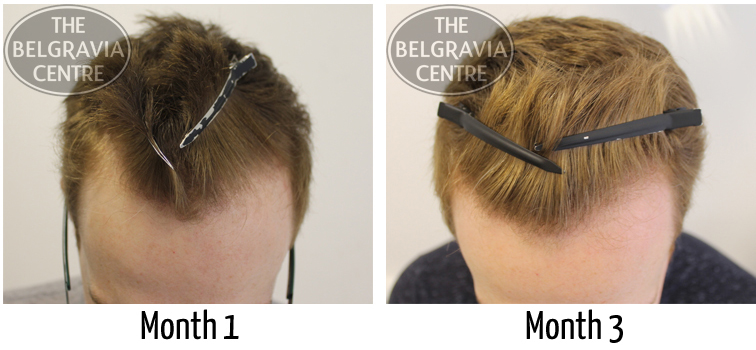An example of Male Pattern Hair Loss successfully treated by The Belgravia Centre