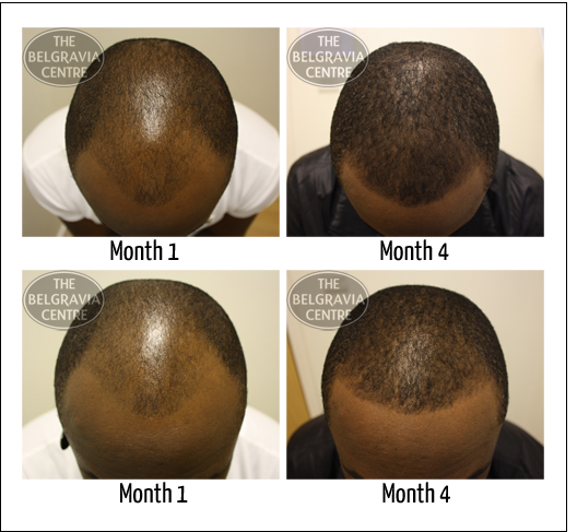 Example of Male Pattern Baldness treated by The Belgravia Centre