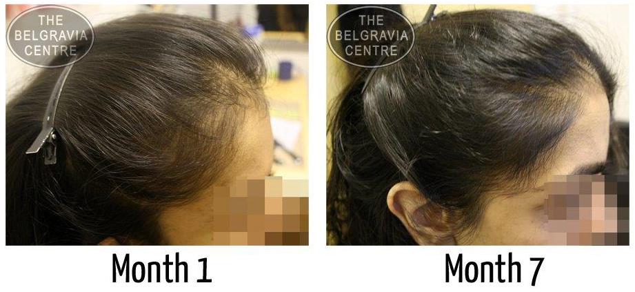 """After my 3rd treatment, I can say that I can see the improvement of my hair.  Big thanks to Shamima, she has been great"" - Female Hair Loss Patient treated by The Belgravia Centre"