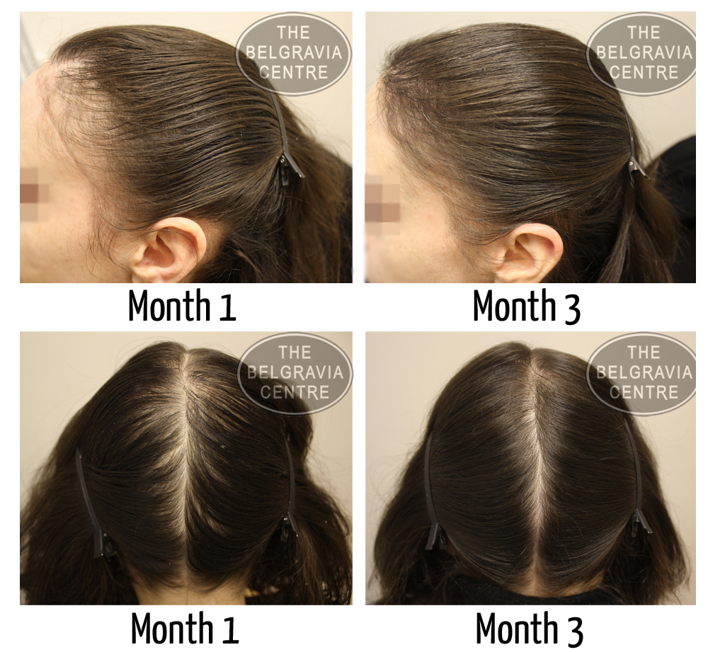 A Belgravia Centre patient successfully treated for Traction Alopecia and Chemical Damage to her hair