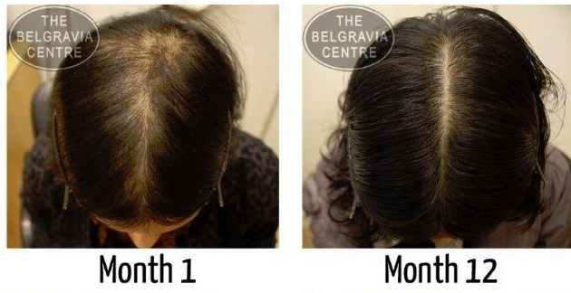 A Female Pattern Hair Loss and Telogen Effluvium Patient's Hair Loss Success Story