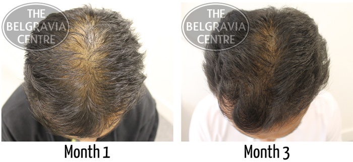 """After just 3 months of hair loss treatment at The Belgravia Centre, Saidul """"can see improvements"""""""