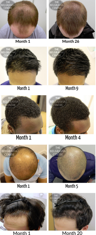 Belgravia Centre Patients Demonstrate the Various Levels of Regrowth and Stabilisation of Hair Regrowth They Have Experienced
