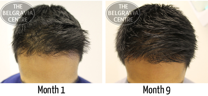 """Belgravia Male Pattern Hair Loss Client : """"...Great Service... Will Definitely Recommend!"""""""