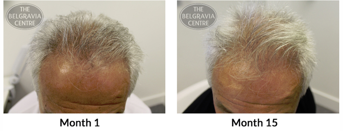 """Belgravia Male Pattern Hair Loss Client : """"My Hair Is Growing Steadily"""""""