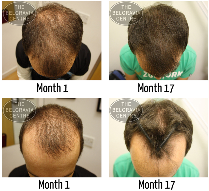 """Belgravia Male Hair Loss Client: """"...I Definitely Consider it a Good Investment..."""""""