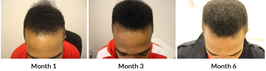 Example of Stabilisation and Thickening of Hair During Regrowth Stages of Hair Loss Treatment