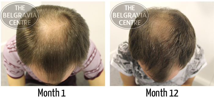 """Belgravia Male Hair Loss Client: """"...I Have Seen A Great Improvement to My Hair..."""""""
