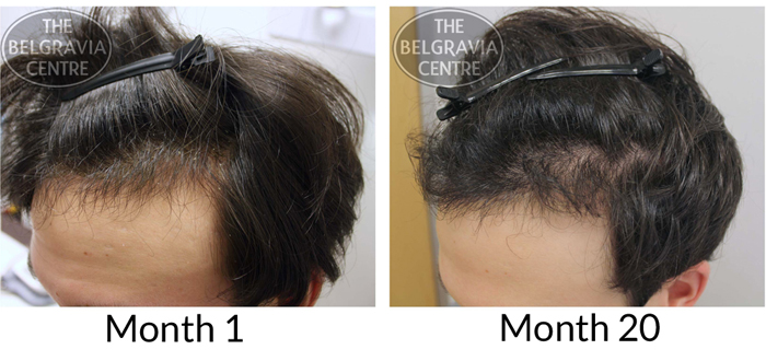 """Belgravia Male Hair Loss Client: """"...It Has Helped My Confidence..."""""""