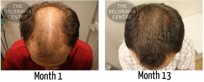 """Male Pattern Hair Loss Patient: """"...Very Pleased to See EXCELLENT Results... It Is Amazing.."""""""
