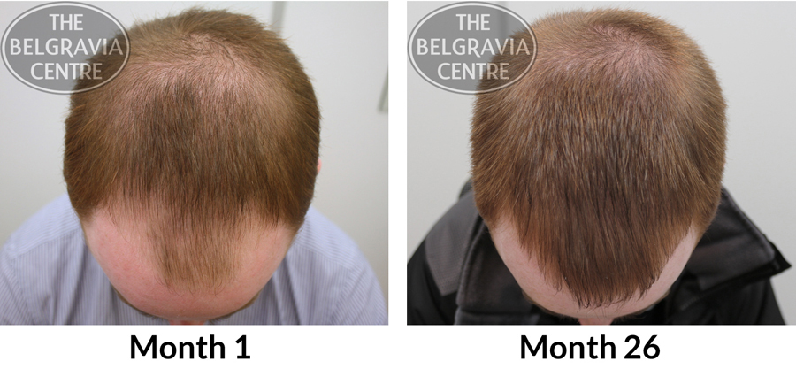 """Belgravia Male Pattern Hair Loss Patient: """"...I Noticed Great Regrowth Within 4-6 Months..."""""""