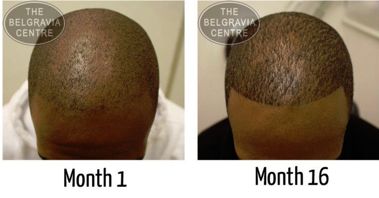 """Belgravia Male Pattern Hair Loss Patient: """"...I Was Sceptical But This Stuff Works!"""""""