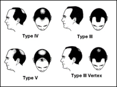 Norwood Scale of Hair Loss