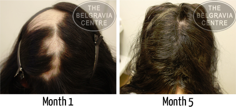 Miss F Before and After Belgravia Centre Hair Loss Treatment for Alopecia Areata