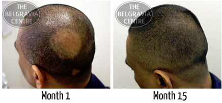 Mr H before and after Belgravia Centre treatment for Alopecia Areata