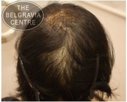 Telogen Effluvium Hair Loss - Belgravia Centre Hair Loss Clinic Patient Photo Before Treatment