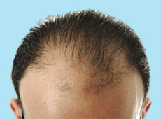 Going Bald: Frequently Asked Questions