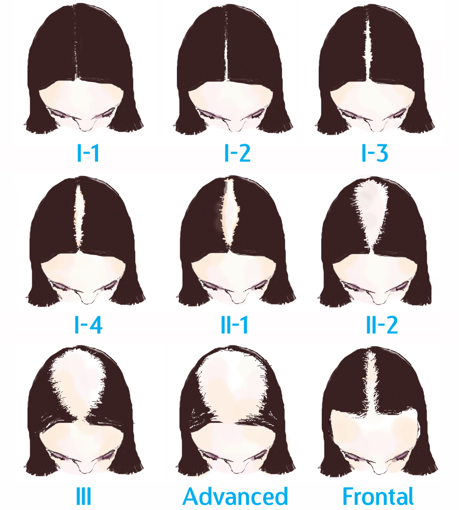 The Ludwig Scale of Women's Hair Loss.jpg