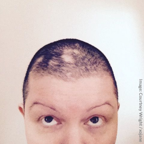 Woman Shaves Head to Cope With Trichotillomania Hair Loss
