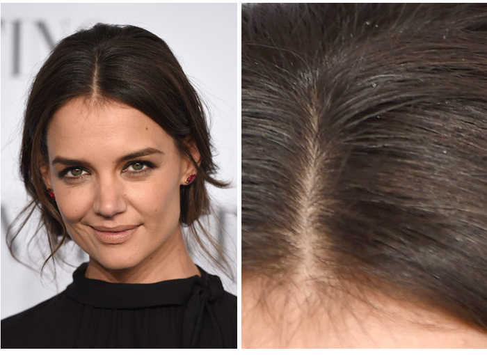 Could Katie Holmes' Dandruff Be Caused By Cold Weather?
