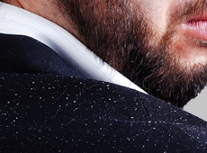 Could Persistent Dandruff Cause Hair Loss?