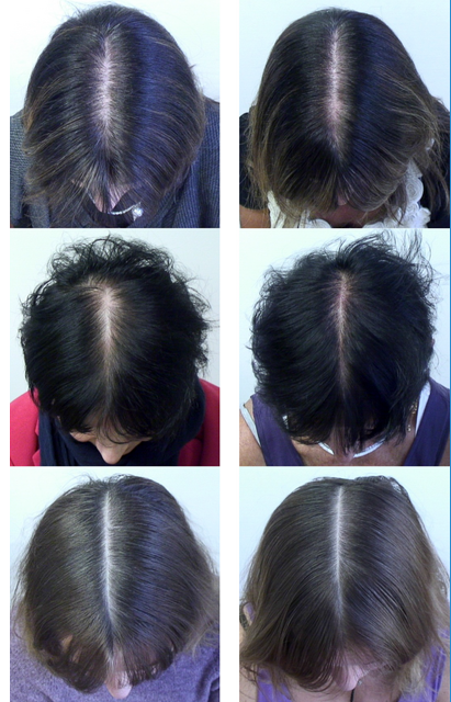 Before and After Photoscans of Women Taking Dietary Supplements for Study into Female Pattern Hair Loss and Nutrition