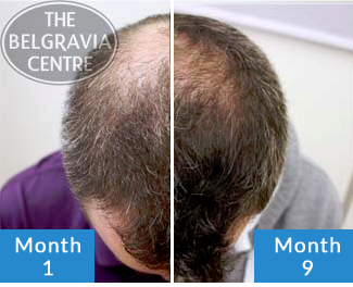 Click to See Belgravia Client Scott's Male Pattern Baldness Hair Loss Treatment Success Story