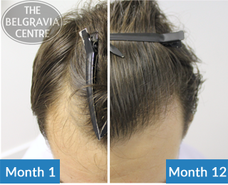 This Belgravia Client Is Using Our Male Hair Loss Treatments to Restore His Receding Hairline