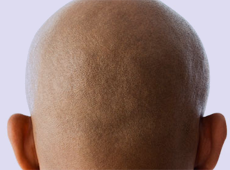 Preventing Baldness - Advice and Information from The Belgravia Centre