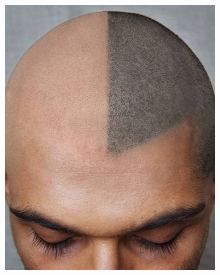 Scalp Micropigmentation - Scalp Tattoos to Disguise Hair Loss