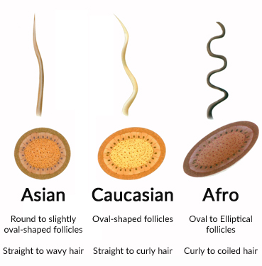 Diagram Showing Hair Fibre Characteristics by Race