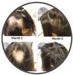 Circ The Belgravia Centre Hair Loss Treatment for Alopecia Areata